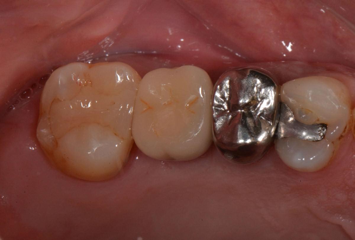 世樺牙醫診所, 植牙
