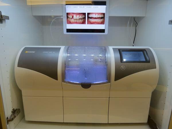 悅庭牙醫診所, 研磨機