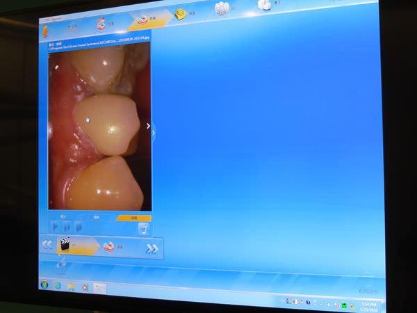 悅庭牙醫診所, 牙冠