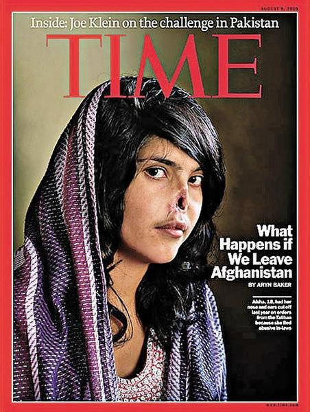 阿富汗割鼻少女, TIME時代雜誌