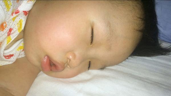 2015-04晚上檢查小步吉臉部有沒有玫瑰疹