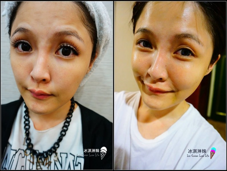 洗臉的事 醫生的事 – Thera Clean醫洗臉 解決夏季肌膚問題