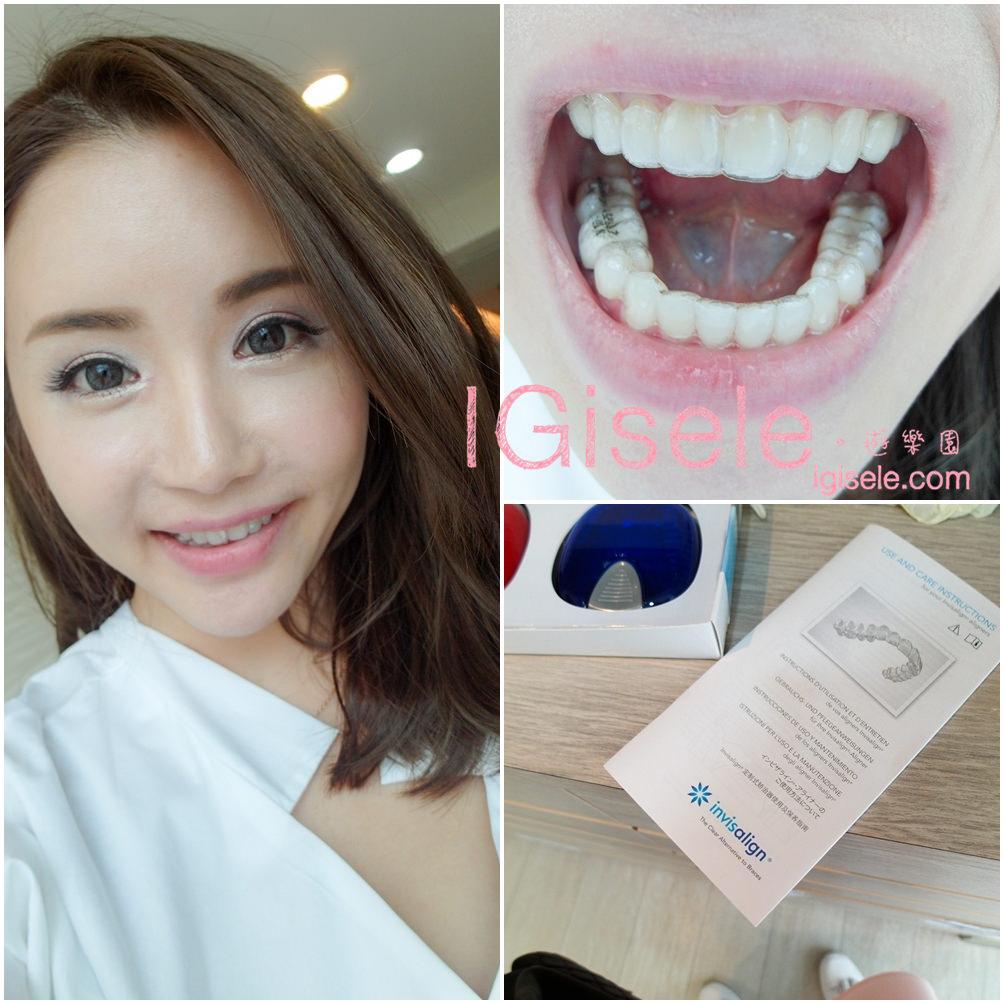 [矯正] 悄悄的重新矯正牙齒,舒適的透明牙套隱適美