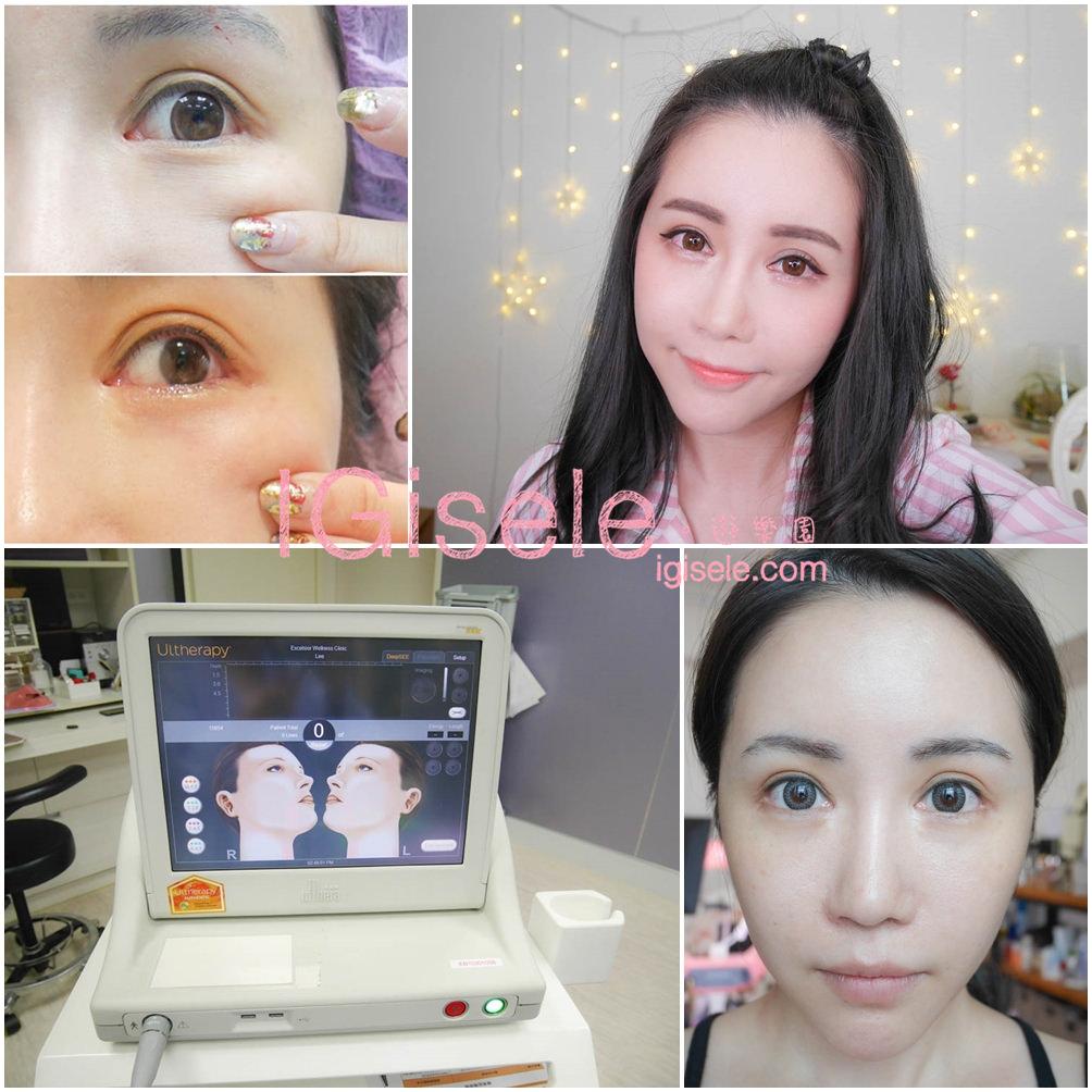 [醫美] 做了電波拉皮+音波拉皮 全臉跟眼週.眼皮鬆弛、法令紋下垂、雙下巴的人可以看這篇心得